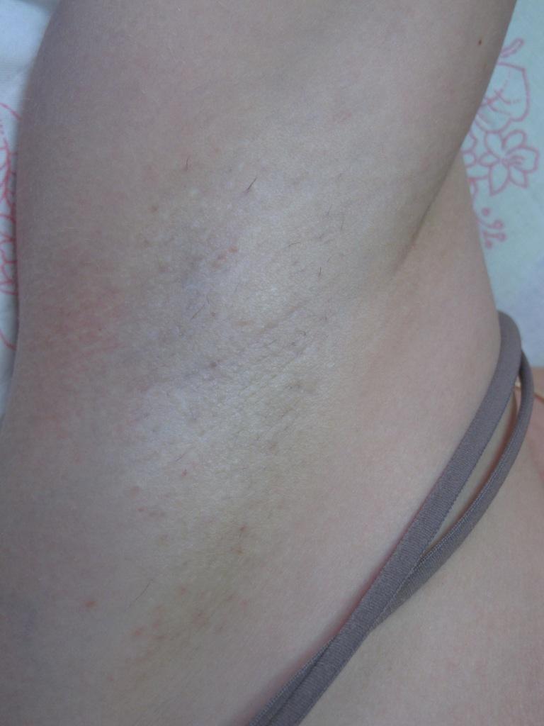 Фото лобок со светлыми волосами 13 фотография